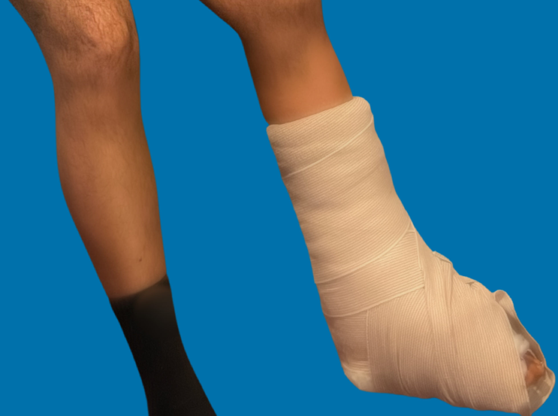 Should I get an injury lawyer of ankle surgery required?